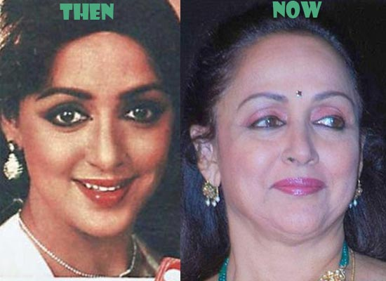 Hema Malini Plastic Surgery Before And After Pictures