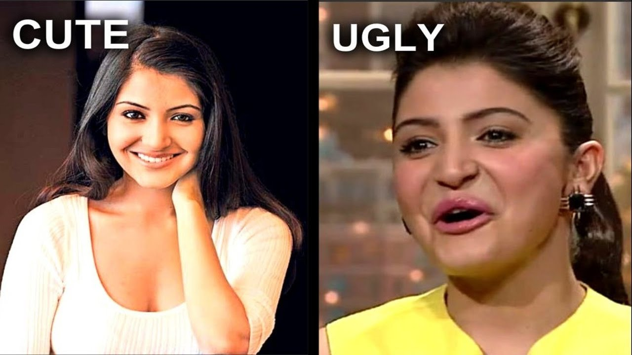 Anushka Sharma Plastic Surgery Before And After 02