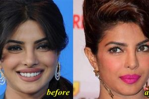Priyanka Chopra Nose Job Before And After picture 02