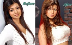 Bollywood Actresses Plastic Surgery Gone Wrong Before And After Pictures Ayesha Takia