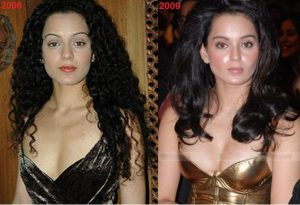 Bollywood Actresses Plastic Surgery Gone Wrong Before And After Pictures Kangana Ranaut