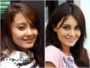 Bollywood Actresses Plastic Surgery Gone Wrong Before And After Pictures Minisha Lamba