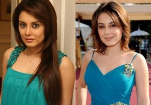 Minissha Lamba Plastic Surgery Before And After  Breasts Implants