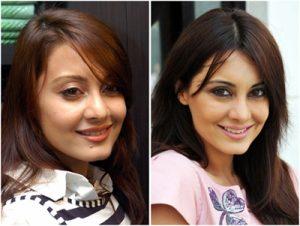 Minissha Lamba Plastic Surgery Before And After Nose Job