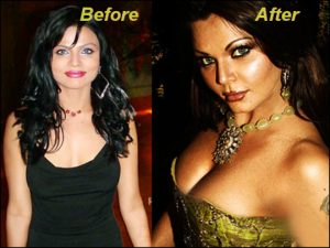 Rakhi Sawant Plastic Surgery Before And After Breasts Implants