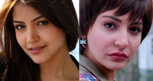 Bollywood Celebrities Who Had Plastic Surgery